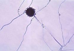 Aspergillus Mold
