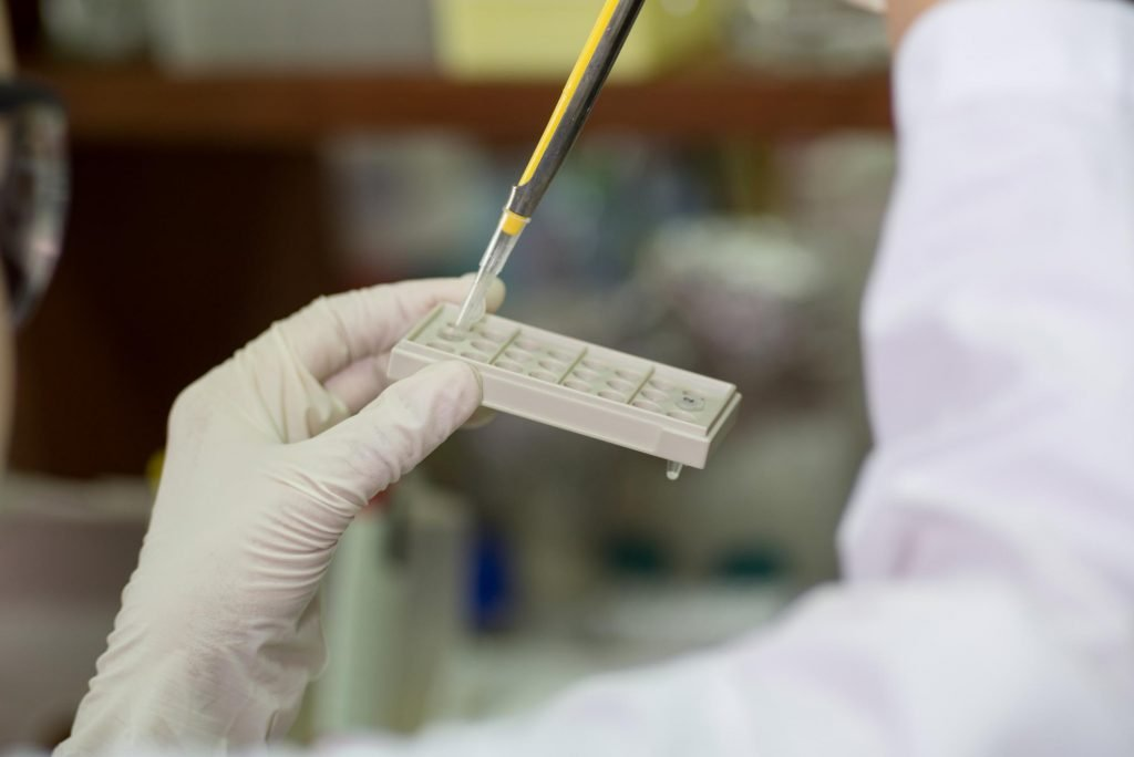 mold test in lab